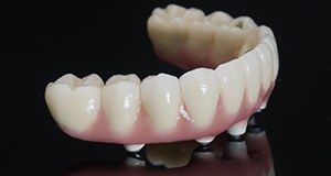 Implant retained denture prior to placement