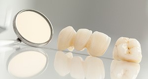 Dental crown and bridge restorations before treatment